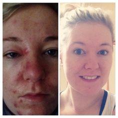 Skin-results